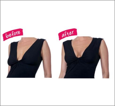 Senera Plus. Breast Shaper-Instant Lift C/D